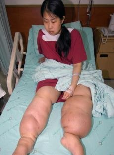 Elephantiasis in young girl
