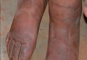 elephantiasis legs images