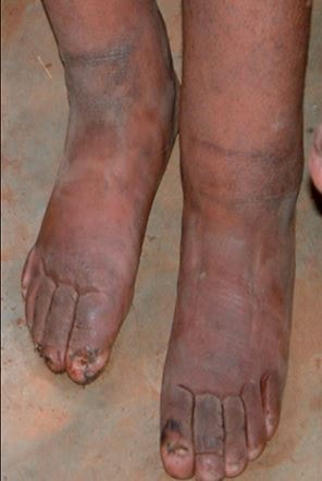 Elephantiasis Pictures What Is Definition Treatment Causes