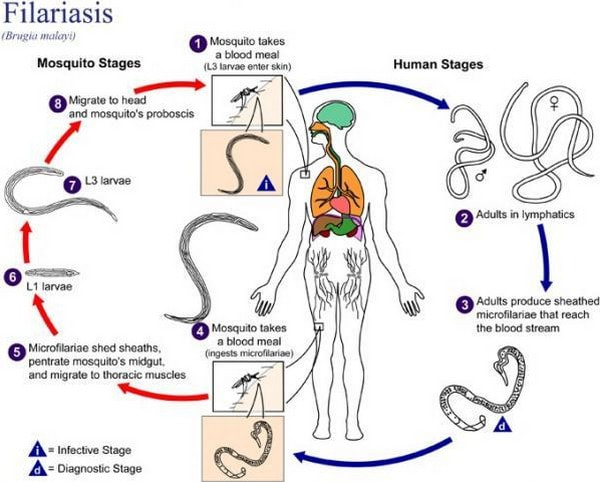 filariasis picture cycle