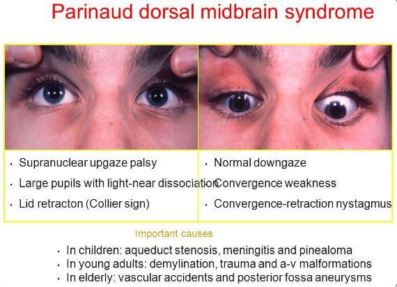 Parinaud Syndrome Signs Symptoms