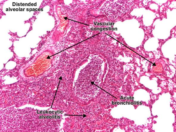 Bronchopneumonia (Lobular pneumonia)