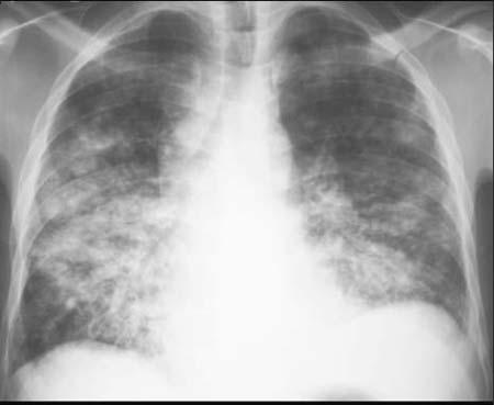 Chest X Ray of BRONCHOPNEUMONIA