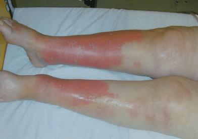 lower-extremities-erythematous-brawny-edema