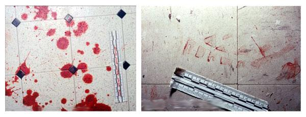Blood Spatter Analysis picture 2