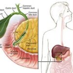 Gallbladder Attack