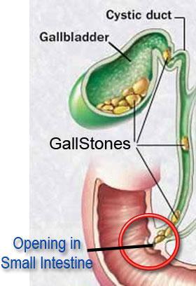 Gallbladder Attack picture 2