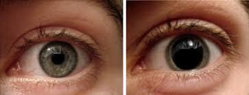 Eye in bright light (left) and eye in dim light (right)