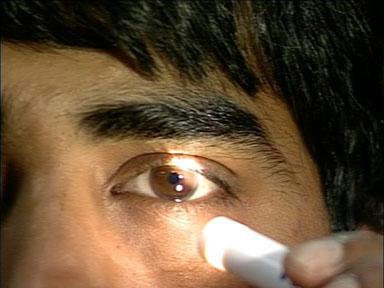 Pupillary examination