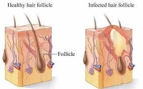 Ingrown Pubic Hair picture 2