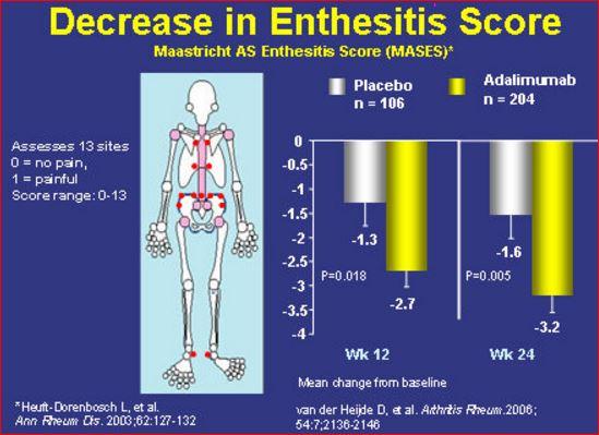 Enthesitis Decreses