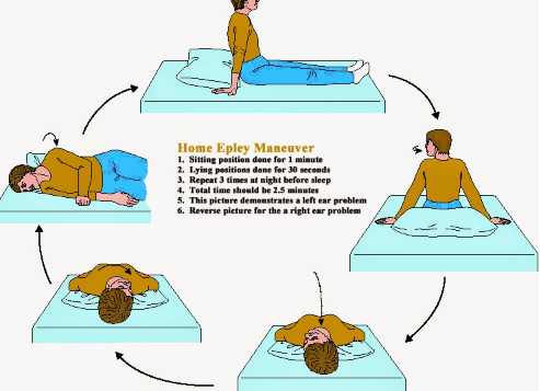 Epley Maneuver Pictures
