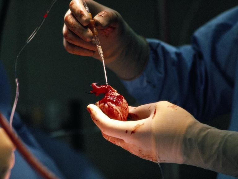 Sinus Bradycardia Picture 2