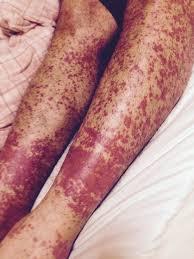 HIV Rash Causes