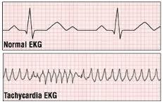 Orphenadrine Citrate normal ECG