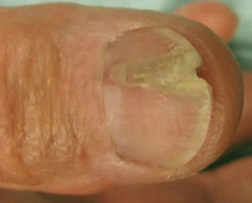 Onychorrhexis on nail