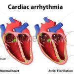 Dysrhythmia