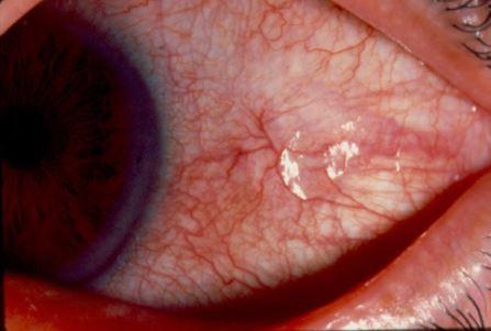 Scleritis Pics