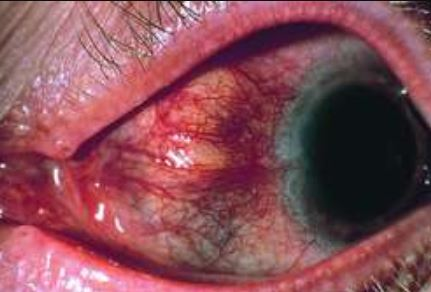 Scleritis images