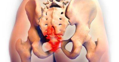TailBone Pain Location