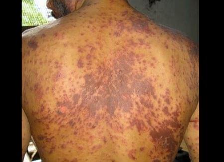 HIV RASH on back