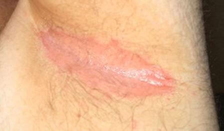HIV Rash - Pictures (Images), Symptoms, Causes & Treatment