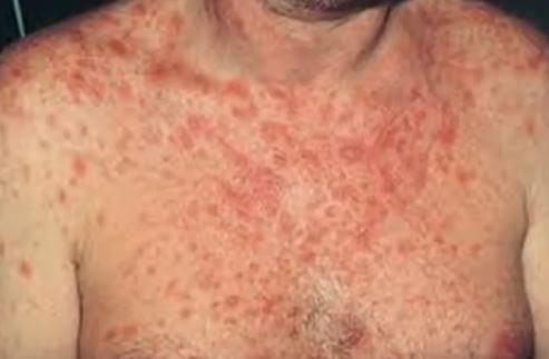 Hiv Rash Pictures Images Symptoms Causes Amp Treatment