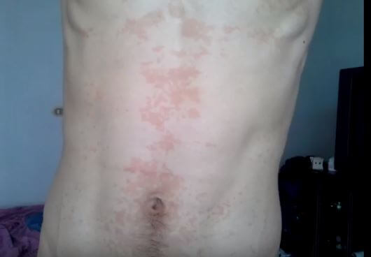 HIV rash on front of Abdomen