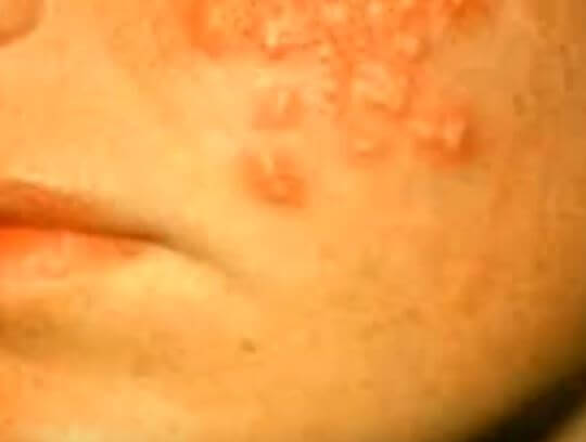 HIv rash pictures 4