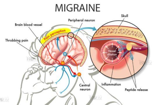 Migraine pathophysiology