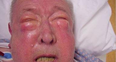 subcutaneous emphysema photos